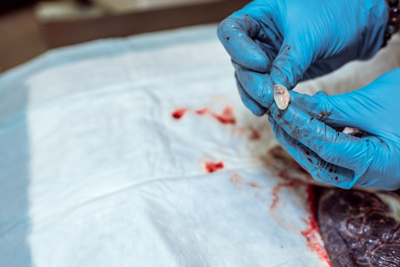 Birth Photography - Birth Photographer - birthing tissue